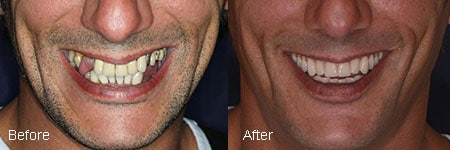no hassle dentistry before and after dental implant image